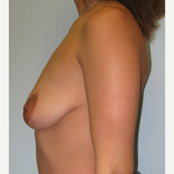 Breast augmentation with Natrelle Inspira implants on 5'2, 127 pound mother of 2 before 3089459