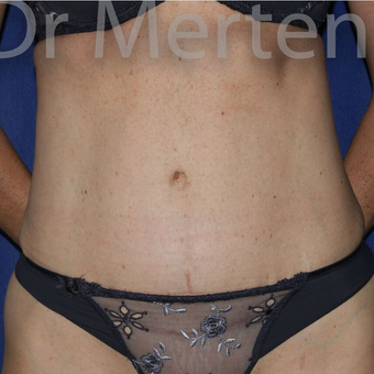Tummy Tuck after 3599439