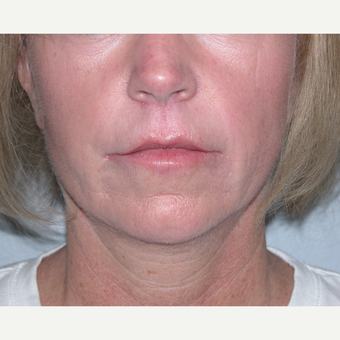 35-44 year old woman treated with Lip Lift after 2682884