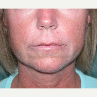 35-44 year old woman treated with Lip Lift before 2682884