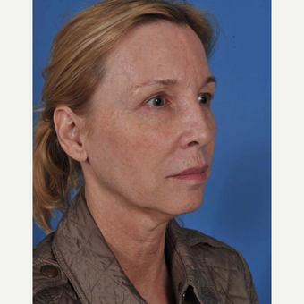 55-64 year old woman treated with Facelift before 3437569