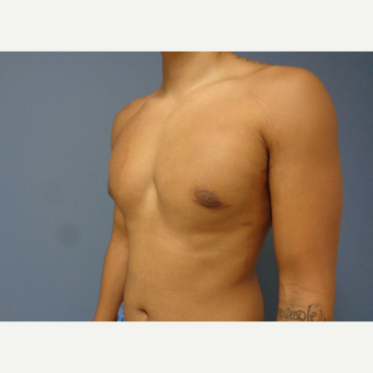 18-24 year old man treated with Male Breast Reduction after 3493581