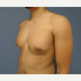 18-24 year old man treated with Male Breast Reduction before 3493581