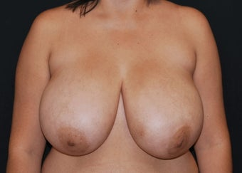 Breast Reduction before 949251