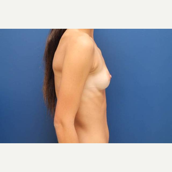22 year old female, 700cc high profile silicone gel implants, submuscular before 3814541