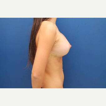 22 year old female, 700cc high profile silicone gel implants, submuscular after 3814541