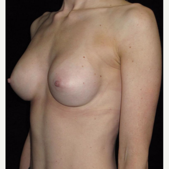 25 year old woman treated with Breast Augmentation after 3656541
