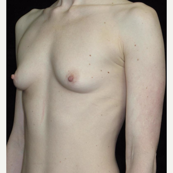 25 year old woman treated with Breast Augmentation before 3656541