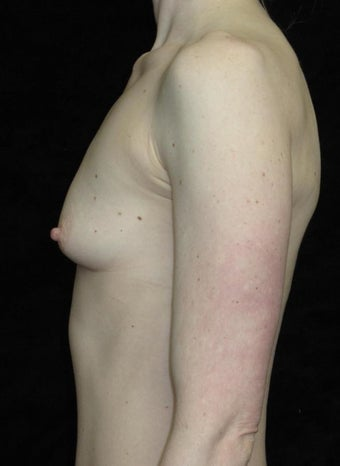 25 year old woman treated with Breast Augmentation 3656541