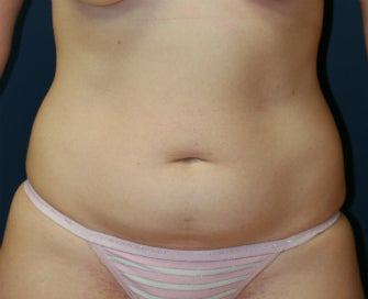 Abdominoplasty (tummy tuck) before 1151942