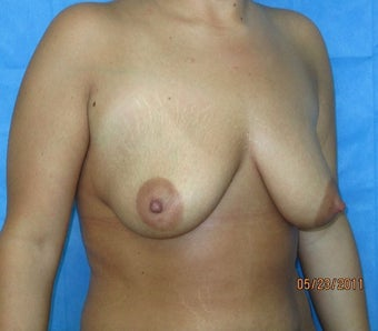 25-34 year old woman treated with Breast Lift before 1965794