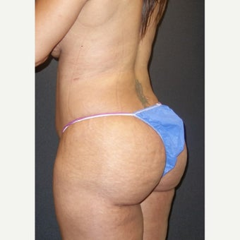 35-44 year old woman treated with Laser Liposuction Back, abdomen, hips and thighs