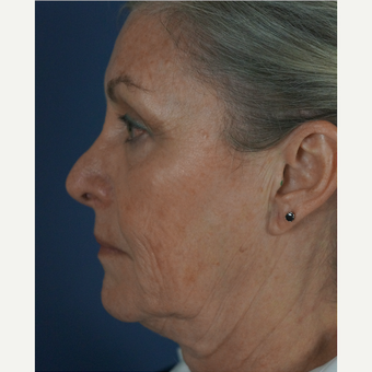 55-64 year old woman treated with Mini Lift