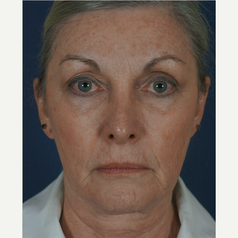55-64 year old woman treated with Mini Lift 1816316