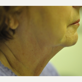 65-74 year old woman treated with TriPollar