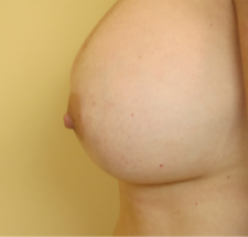 35-44 year old woman treated with Nipple Surgery to correct inverted nipple on the left.