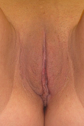 23 year old female treated for excessive labia minora with Labiaplasty after 1063847