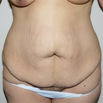 25-34 year old woman treated with Tummy Tuck before 3496099