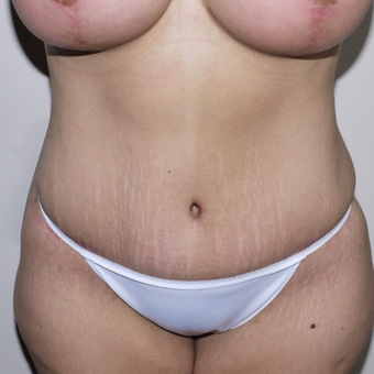 25-34 year old woman treated with Tummy Tuck after 3496099