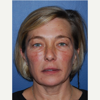45-54 year old woman treated with Lower Face Lift before 3428281