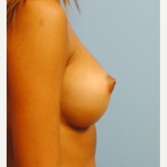20 year old woman treated with saline Breast Implants. A to C with 290 cc high profile filled to 300 after 3304513