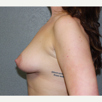 Breast Augmentation with lifting and skin excision before 3366374