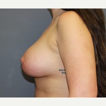 Breast Augmentation with lifting and skin excision after 3366374