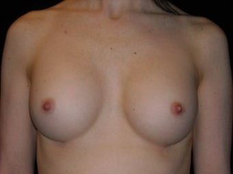 Breast implant revision with Strattice
