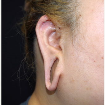 18-24 year old woman treated with Ear Lobe Surgery before 3741680