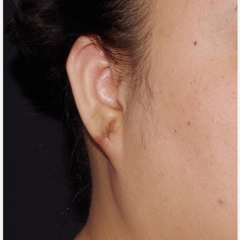 18-24 year old woman treated with Ear Lobe Surgery after 3741680