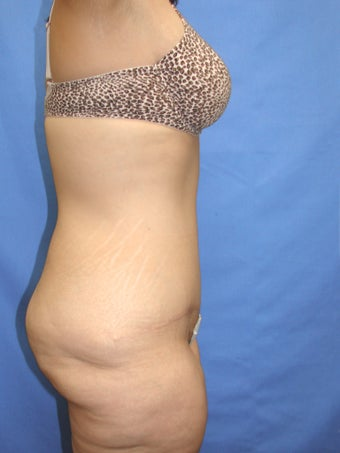 35-44 year old woman treated with Tummy Tuck 2459784