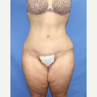 35-44 year old woman treated with Tummy Tuck after 2459784