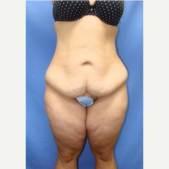 35-44 year old woman treated with Tummy Tuck before 2459784