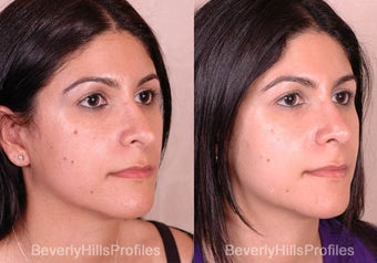 Revision Rhinoplasty before 681874