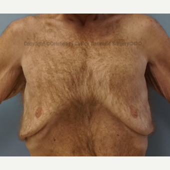35-44 year old man treated with Male Breast Reduction before 3576600