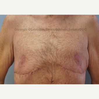 35-44 year old man treated with Male Breast Reduction after 3576600