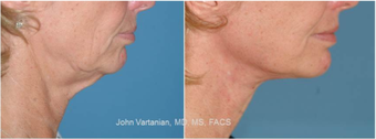 45-54 year old woman treated with Facelift after 3810184