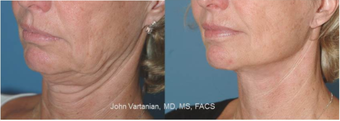 45-54 year old woman treated with Facelift before 3810184
