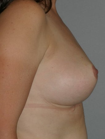 42 year old female-Breast Reduction 1317553