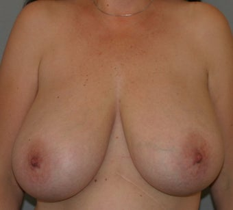42 year old female-Breast Reduction before 1317553