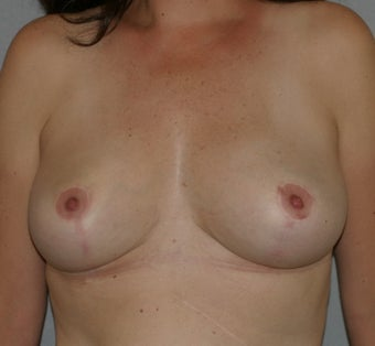 42 year old female-Breast Reduction after 1317553