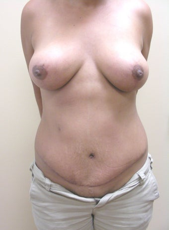 36 year old woman who had a breast lift and a tummy tuck after 1245510