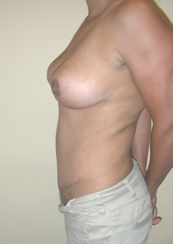 36 year old woman who had a breast lift and a tummy tuck 1245510