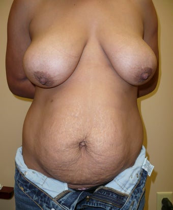 36 year old woman who had a breast lift and a tummy tuck before 1245510