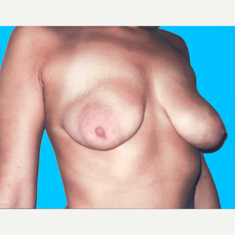 Breast Lift with Implants before 3748878