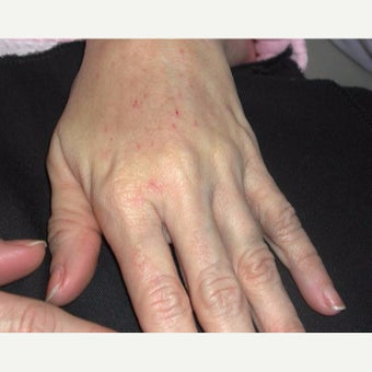 Woman treated with Radiesse