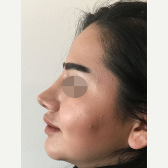 35-44 year old woman treated with Rhinoplasty after 3813367