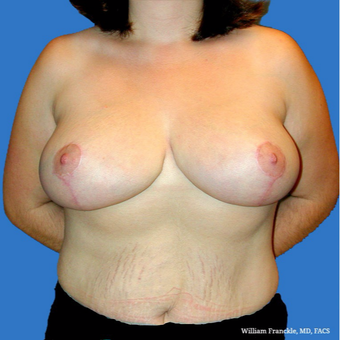 Breast Reduction after 3604373