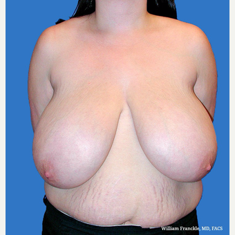 Breast Reduction before 3604373