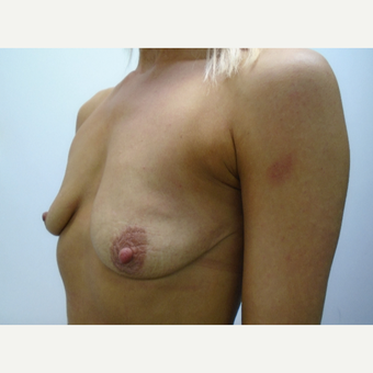 35-44 year old woman treated with Breast Augmentation before 3832913